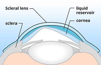 Scleral Lenses in Sugar Land, TX