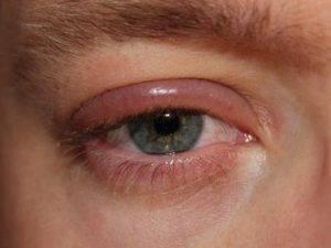 Dry Eye, Round Rock, Tx