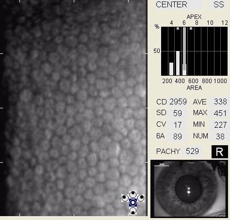 specularmicroscopy