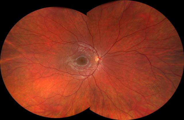clarus 500 normal retina