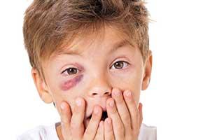 eye injury boy