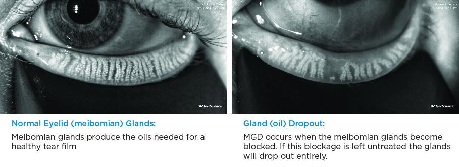 gland comparison
