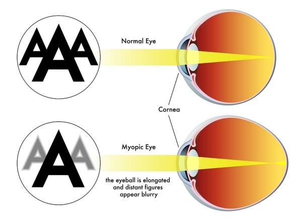 How-Orthokeratology-Can-Help-with-Myopia[1]