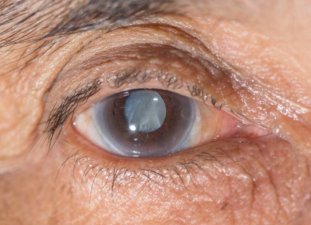 cataract_39425275
