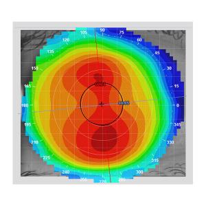 e300-extreme-accuracy-sm