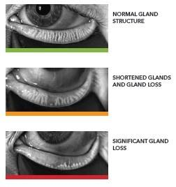 gland structure
