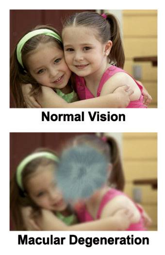 Macular Degeneration Vision Eye Exam