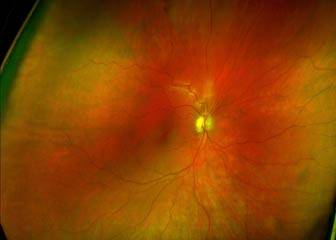 eye exam belleville and eye exam belleville