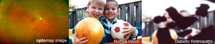 patients eye optomap image and normal vision with children and diabetic retinopathy | Coffman Vision Clinic in Bend Oregon