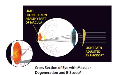 Escoop for macular degeneration