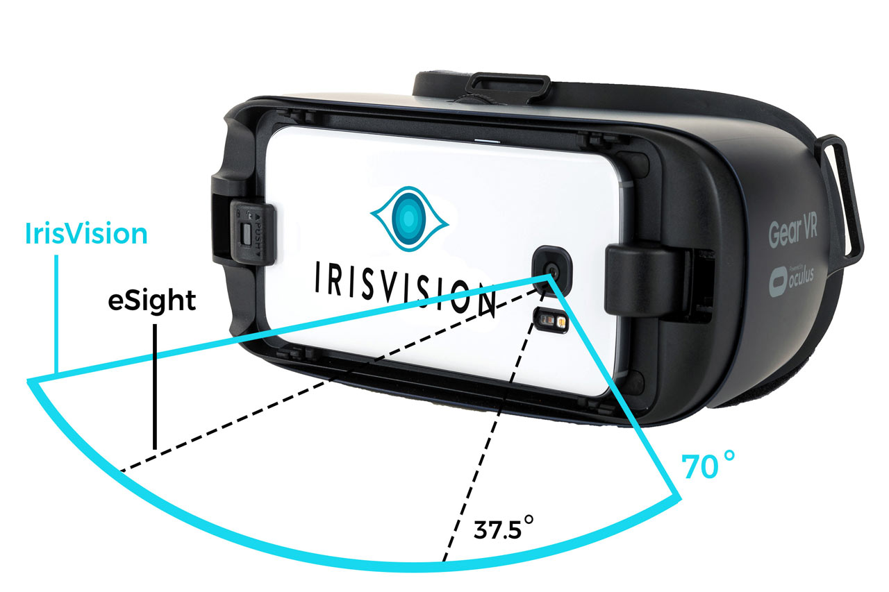 how much does irisvision cost in