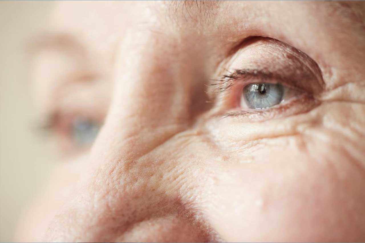 Close up of woman's eyes, with cornea transplant