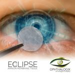 Ophthalogix Medicine for your eyes 28