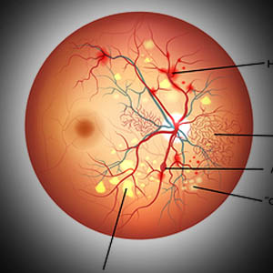 Diabetic Retinopathy,  Read +