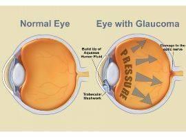 glaucoma eye3