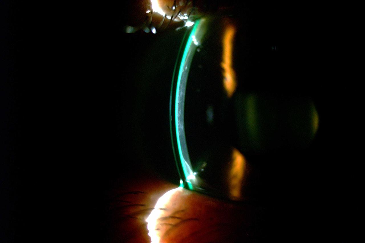 Scleral Lens RA Transplant 1280x853