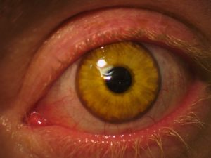 Closeup of Scleral Lens on Eye - Baltimore, Maryland