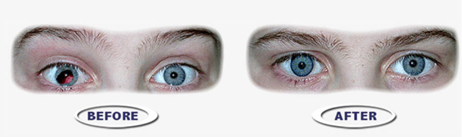 Prostethic Contact Lenses