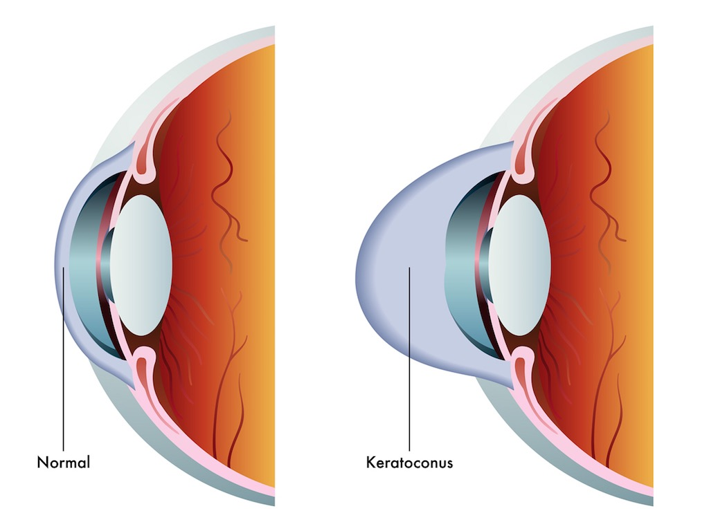 Keratoconus Symptoms and Treatment Options