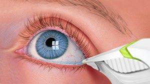 Tear Testing - dry eye care Laguna Beach CA