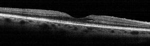 retina2 full oct