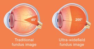 ultra wide fundus image vs traditional image comparison diagram