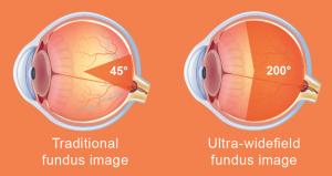 ultra wide fundus image vs traditional image comparison diagram