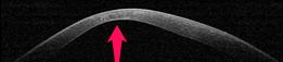 thinning cornea 1