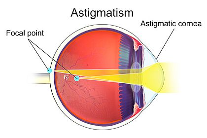 diagram of astigmatism 420×280