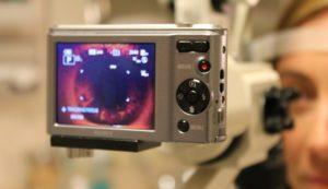 Slit Lamp with Anterior Segment Digital Camera 300×173