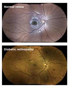 Retinal Photos