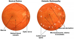 diabetic retinopathy graphic