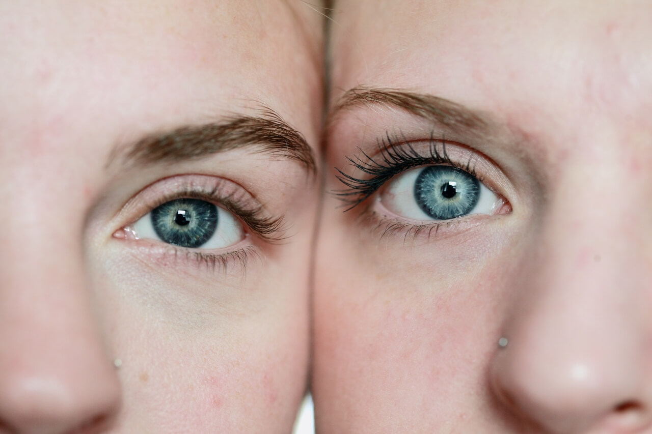 Close up of women's eyes, with Amblyopia