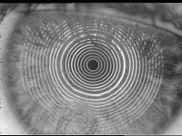 corneal topography image