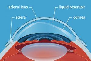 scleral lens diagram 330×220 2x