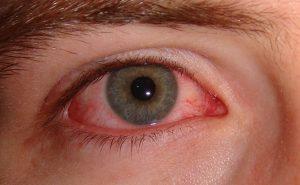 1200px Pink eye