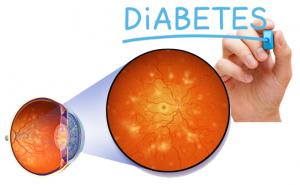 pic condition diabetic retinopathy