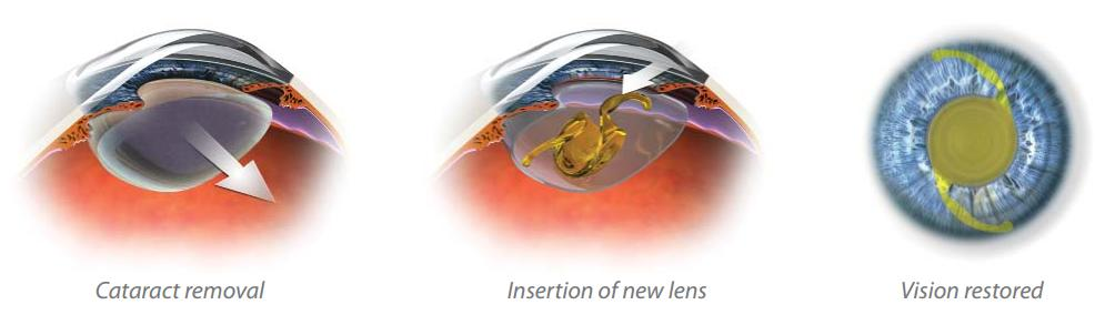 alcon cataract graphic