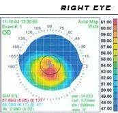 Corneal topography 20map