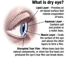 dryeye diagram