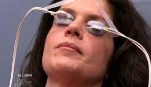 LipiFlow to treat dry eye syndrome