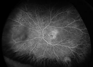 Eye Doctor, Diabetic Macular Edema (DME) in Houston, TX.