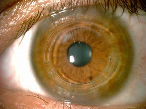 Optometrist, Keratoconus Treatment in Houston, TX.