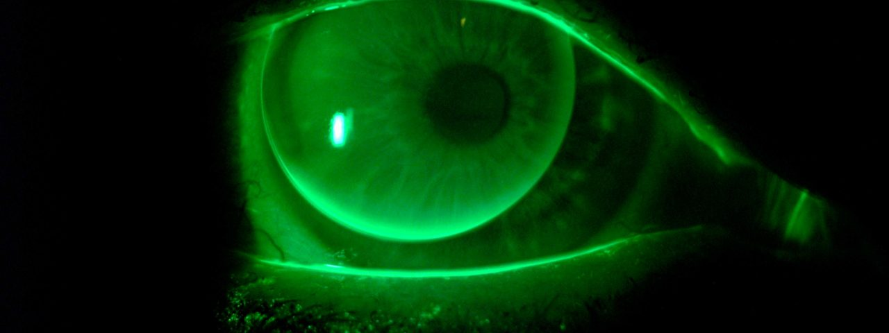 Gas Permeable (GP) Contact Lenses