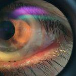 eye exam, EyePrintPro lenses in Houston, TX