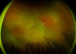 Optometrist, Macular Degeneration in Houston, TX.