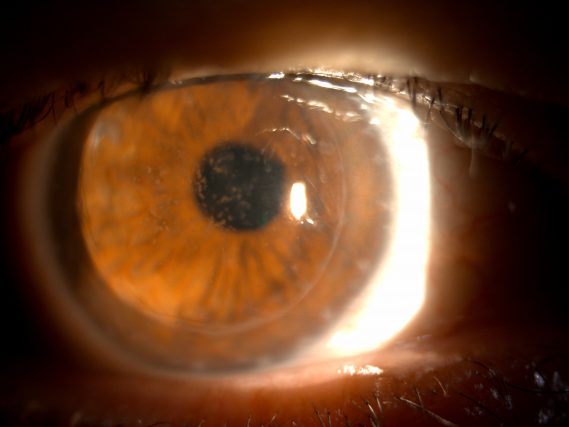 Corneal Dystrophy Treatment in Houston | Family Vision Solutions