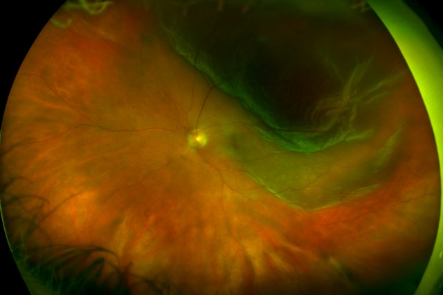 Color - Retinal Detachment - California; Courtesy of Optos