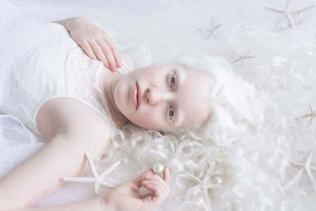 young lady with Low Vision Care For Albinism