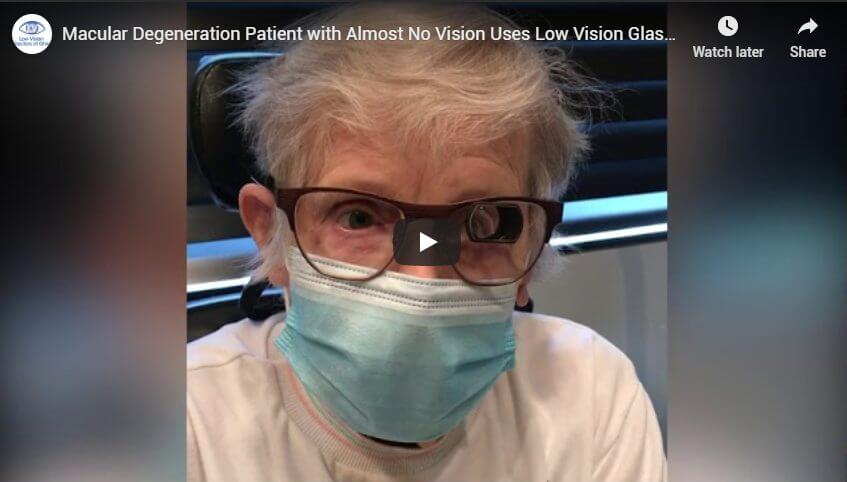 Macular Degeneration Patient with Almost No Vision Uses Low Vision Glasses